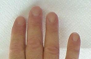 Flared Fingernails