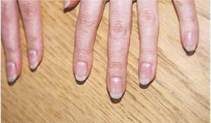 How to Read Fingernails based on their Shape